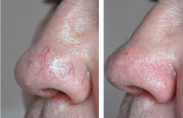 visible veins on nose